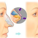 Quy trình nâng mũi bán cấu trúc đúng chuẩn tại Dr Tiến