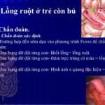 Bài giảng bệnh lồng ruột cấp ở trẻ nhũ nhi