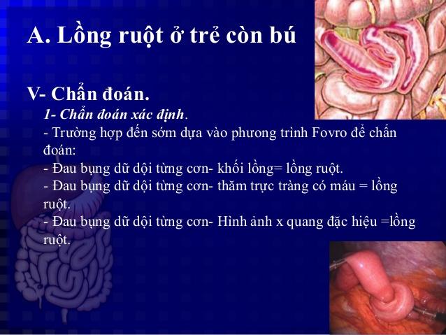 bai-giang-benh-long-ruot-cap-o-tre-nhu-nhi-dr.tien