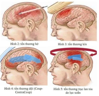 bai-giang-chan-thuong-vet-thuong-so-nao-dr.tien