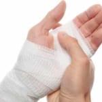Bài giảng vết thương bàn tay