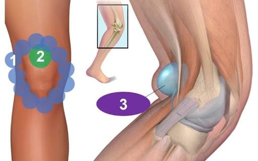 Chẩn đoán chứng u bao hoạt dịch dựa vào đặc điểm nào?