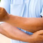 U bao hoạt dịch khuỷu tay: dấu hiệu và cách chữa trị
