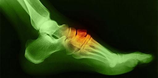 Khối u hình thành ở mu bàn chân có nguy hiểm không?