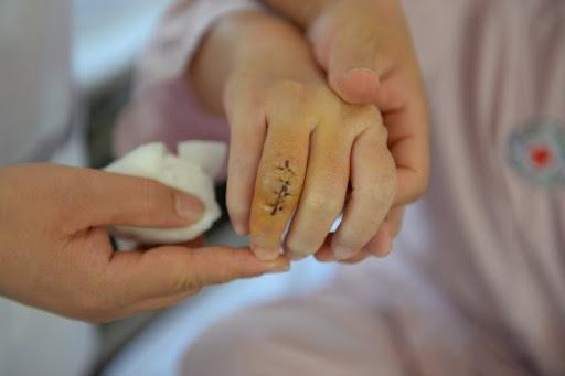 Mổ u bao hoạt dịch khớp cổ tay