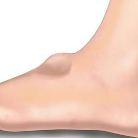 Những nguyên nhân nào dẫn đến u bao hoạt dịch mu bàn chân?
