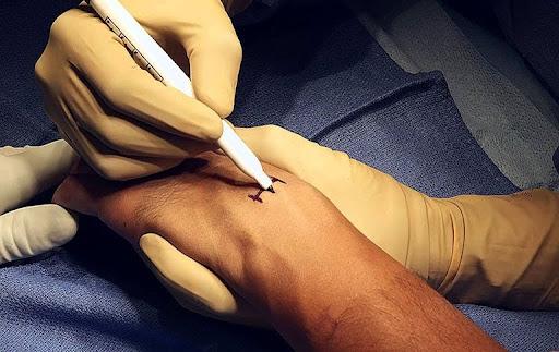 Quy trình mổ u nang bao hoạt dịch khớp cổ tay