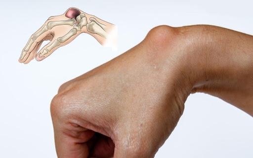 U bao hoạt dịch cổ tay có thật sự nguy hiểm