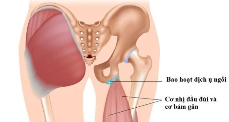 U bao dịch ở vùng mông