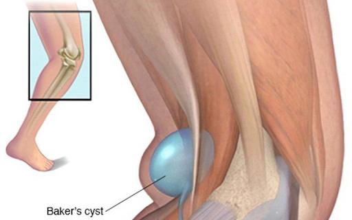 U nang bao hoạt dịch khớp chân