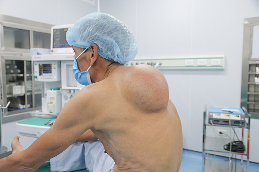 chi phí phẫu thuật u mỡ là bao nhiêu tiền
