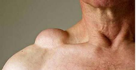Có nhiều yếu tố làm tăng nguy cơ mắc bệnh u mỡ ở vai.