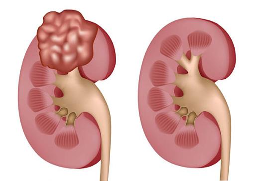 U cơ mỡ mạch thận là khối u xuất hiện ở thận.