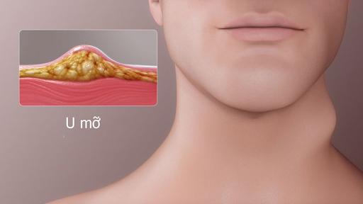 U mỡ cổ là tình trạng bệnh khá phổ biến hiện nay.
