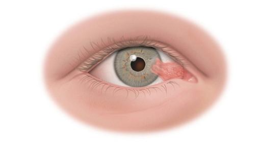 U mỡ kết mạc là các khối u xuất hiện tại các vị trí trên giác mạc hay kết mạc của mắt.