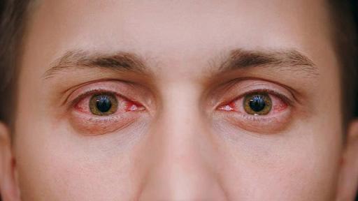 U mỡ kết mạc mắt không gây nguy hiểm đến tính mạng nhưng ảnh hưởng đến tính thẩm mỹ.