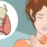 Bệnh bướu giáp đa nhân là gì? Triệu chứng và nguyên nhân