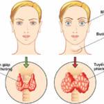 Bướu cường giáp có nguy hiểm hay không? Triệu chứng và cách điều trị